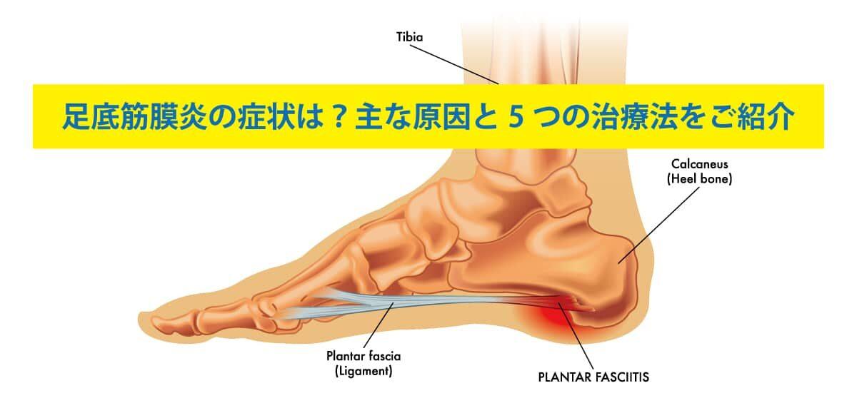 足底筋膜炎の症状は?主な原因と5つの治療法をご紹介